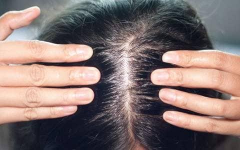 Jojoba Yağının Saça Faydaları Nelerdir?