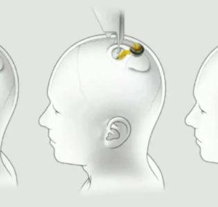 İnsan Beynini Bilgisayarlara Bağlamak Mümkün mü ?